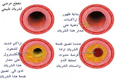 توعية صحية كاملة بمرض ارتفاع ضغط الدم