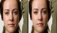 ازالة عيوب الوجه