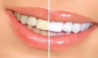 تقديم نصائح لمرضى الأسنان و كذلك لطلاب طب الأسنان في جميع التخصصات
