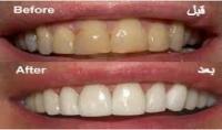 احصلوا على ابتسامة ساحرة :تقديم وصفة فعالة جدا لتبييض الاسنان