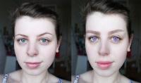 تعديلات تجميلية على صورتك وازالة شوائب البشرة منها