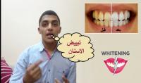 الاجابه على الاستفسارات المتعلقه ب تبييض الاسنان