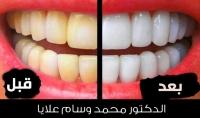 تبييض الأسنان منزليا مع الدكتور محمد وسام علايا