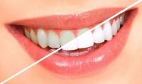 تركيبات منزلية لتبيض الاسنان سهلة ورخيصة